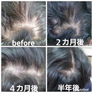大野城髪質改善&予防美容専門美容室Lien hair design(リアン ヘアー デザイン)育毛プログラムコースのご紹介です(^^)  髪質改善のイメージの強いリアンですが予防美容メニューとして頭改善皮&育毛コースも人気メニューとなっております( ^∀^)  最近、加齢や白髪染めの繰り返しによる頭皮ダメージなどで  ・髪のハリコシがなくなってきた ・つむじ周りの地肌が透けてみえる ・髪が細くなってきた気がする ・仕事が忙しくなって髪が抜けるようになった ・分け目が目立つようになってきたかも  など、お悩みを抱えている方も多いと思います。  近年では男性と同じようにバリバリ働く女性も多く、日々のストレスや食生活の乱れによって、薄毛に悩む20〜30代の方が増えてきています!  脱毛症といえば、生え際や頭頂部の髪が部分的に薄くなる症状が思い浮かびやすいですが、女性の場合は全体的に髪が減っていくことが多いです。そのため男性と違い女性は薄毛の兆候となる髪や頭皮のサインを見逃しがちになってしまいます。  このような髪の抜け方を「びまん性」の脱毛症といいます。  薄毛になる兆候として、髪や頭皮にこのような特徴が見らたら要注意!!  ・髪が細くなる 全体の髪の毛が細くなります。ストレスや健康状態の悪化などが原因です。  ・頭皮が赤い 頭皮が赤くなっている場合は、薄毛の原因となる炎症を起こしている可能性があります。  ・頭皮が硬い 頭皮が硬い場合は血行が悪い状態です。髪にハリやコシがなくなり、抜け毛の原因になります。  ・フケが気になり始める フケは頭皮のトラブルを表します。ベタベタするタイプ、カサカサするタイプなど、いくつか特徴が見られます。  ・頭皮のベタつき 1日仕事をした後、頭皮がベタつくといったケースも。頭皮の毛穴を詰まらせる原因になります。  薄毛の兆候に早く気づくためには、自分で頭皮や髪に触れ、状態を知っておくことが大切です。  女性が薄毛になってしまう原因は主に3つあります。  日々のストレスによる血流の悪化  仕事や人間関係などのストレスを感じることで体が緊張し、血管が収縮します。血流が悪くなると頭皮に十分な栄養が行き渡らなくなり、髪の成長が妨げられてしまうのです。髪を洗う前の頭皮マッサージなどによって、血流を良くする習慣をつけましょう。  食生活の乱れによる女性ホルモンの減少  女性ホルモンには、髪の毛のサイクルを整える、健康な髪の毛を保つといった働きがあります。食生活の乱れにより女性ホルモンが減少することで、髪が細くなったり髪が抜けたりすることも。  女性ホルモンと同じような働きを持つのが大豆食品に含まれる大豆イソフラボンです。髪の健康を保つためには、普段から豆乳や納豆などを積極的に摂取するとよいでしょう。  油分の多い食べ物による皮脂の過剰分泌  甘いものやファストフードなど、油分が多く含まれている食べ物を多く摂取すると、過剰に分泌された皮脂が毛穴に詰まってしまいます。油分が頭皮に付着した状態が続くことで、薄毛を引き起こす原因に。  普段の食生活では油分の多い食べ物を取りすぎないようにし、ビタミンBを豊富に含む魚介類などの摂取を心がけましょう。ビタミンBは皮脂の過剰分泌を抑える働きをしてくれます。  リアンでは幹細胞培養液、テロメラーゼ、キャピキシルを主軸にフラーレン、ナースルゲンを使用して2週間に1度のサロンケアとシャンプー、トリートメントを中心としたホームケアを用いて頭皮環境を改善して整えていきます(^^)  もし上記の症状に心当たりのある方Lien hair designで予防美容として頭皮改善メニュー試してみられませんか?( ^∀^)  10月は19.26日にお休みをいただいておりますので皆様宜しくお願い致します! そして祝日がなくなったのを教えていただいた皆様ありがとうございますm(_ _)m  「髪質改善」美容室 リアン ヘアーデザイン  福岡県大野城市中央2丁目1−13  tel:092-593-3339  ※完全マンツーマンサロンですので、 お電話の対応、施術、会計など 全てひとりで担当させていただいております。 そのため施術中はお電話が取れない場合がございます。 その際は折り返しご連絡をさせていただきます  #大野城 #大野城市 #春日 #春日市 #太宰府 #太宰府市 #筑紫野 #筑紫野市 #福岡 #博多区 #マンツーマン美容室 #プライベートサロン #コロナ対策 #大野城駅 #髪質改善 #大野城髪質改善 #大野城市髪質改善 #幹細胞培養液 #テロメラーゼ #キャピキシル #ナースルゲン #フラーレン #アクティバート #モナリ #oggiotto #オッジィオット