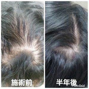 大野城髪質改善&予防美容専門美容室Lien(リアン)から大人気の『育毛』メニューのご紹介です!  リアンと言えば髪質改善や美髪、ヘアケアのイメージが強いと思いますが、美しい髪は美しい頭皮から!  実は美髪メニューと同じくらいに育毛メニューも大人気なのです(^ー^)  今、話題のヒト幹細胞培養液を使った強く美しい髪を育むエイジングケアの革新的アプローチ!  年齢に負けない強く美しい髪を取り戻す!  ・日に日に増える抜け毛 ・落ちない頭皮の汚れ ・コシのない細毛 ・気になる薄毛 ・ハリのないうねり毛  などでお悩みのお客様もリアンの『髪育プログラム』で究極のスカルプケアを実感していただくことで美髪スイッチをオンにさせていただきます!  頭皮トラブルを防ぎ、成長期を延ばす!  毛穴の浄化→毛細血管の拡張活性化→毛母細胞の増殖・分化促進  にアプローチする事で  抜けない頭皮環境=成長期を延ばす!!  ヒト幹細胞髪育プログラムAメソッド  ¥13200  (抜け毛、酸化した皮脂、細毛、薄毛、細胞の不活性化にアプローチ頭皮環境を整え、強く美しい髪が蘇るだけでなく、顔全体のリフトアップ効果も期待できます)  ヒト幹細胞髪育プログラムBスカルプメソッド  ¥16500  (Aコースに更に速効性をもたせハリ、コシを実感していただけるとともに究極のスカルプケアを実感いただけるコースとなっております)  を定期的に(理想は2週間に1度)施術させていただき、ご家庭で使われてるシャンプー、トリートメントを代えていただくだけで効果を実感できると思います(^-^)  より効果を早く実感されたい方は専用の育毛剤やサプリメントもございます!  リアンのヒト幹細胞を贅沢に使用し細胞レベルに働きかける『ヒト幹細胞髪育プログラム』であなたも美しい頭皮と美髪を手に入れませんか( ^▽^)  大野城美容室Lien hair design(リアンヘアーデザイン)2021年8月の定休日のお知らせです!  2021年8月は30日に、お休みを頂いております😊  只今10月の中旬まで予約が大変込み合ってきおり、リアンに来ていただけるお客様を、お一人でも多く担当させていただければと思っておりますので、お早めのご予約宜しくお願い致します!  「髪質改善」美容室 リアン ヘアーデザイン  福岡県大野城市中央2丁目1−13  tel:092-593-3339  ※完全マンツーマンサロンですので、 お電話の対応、施術、会計など 全てひとりで担当させていただいております。 そのため施術中はお電話が取れない場合がございます。 その際は折り返しご連絡をさせていただきます  #大野城 #大野城市 #春日市 #太宰府 #太宰府市 #筑紫野 #筑紫野市 #oggiotto #オッジィオット #髪質改善 #美髪チャージ #美髪 #marbb #microbubblesystem #マイクロバブル #ヒト由来幹細胞培養液 #ヒト幹細胞 #アンチエイジング #育毛  #育毛サロン #育毛剤 #抜け毛  #薄毛  #薄毛女子 #薄毛治療 #薄毛改善 #薄毛ちゃん同盟 #薄毛ガール #薄毛対策 #細毛