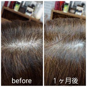 大野城髪質改善&予防美容専門美容室Lien(リアン)から大人気の『育毛』メニュー『ヒト幹細胞髪育プログラムBスカルプメソッド』のお客様です!  最近、分け目が目立ってきたり、頭頂部のボリュームや髪が痩せてきたことによる、ウネリや膨らみでお悩みだったお客様も、リアンの『ヒト幹細胞髪育プログラムBスカルプメソッドコース』を施術されて1ヶ月で、分け目が気にならなくなり正常な頭皮状態&ハリ、コシがでてボリュームアップされました(^ー^)  こちらの『ヒト幹細胞髪育プログラムBスカルプメソッド』はAコースに更に速効性をもたせハリ、コシを実感していたはだけるとともに究極のスカルプケアを実感いただけるコースとなっております!  5αリダクターゼ(皮脂)と男性ホルモン(テストステロン)の結合を抑えることができず、薄毛の原因となる悪玉菌(DHT)を生成。悪玉菌が毛根を攻撃し、発育を阻害。薄毛が進行してしまいます。 (女性も妊娠を機にテストステロンが増えることで同じ現象が起き、産後の抜け毛へと繋がります。)  リアンの『ヒト幹細胞髪育プログラム』は 毛穴の浄化→毛細血管の拡張活性化→毛母細胞の増殖・分化促進を促すことで  ①5αリダクターゼを抑える ②薄毛の原因・悪玉菌がを抑制 ③頭皮環境を整える  ①②③全ての役割を果たし原因を改善していきます!  リアンと言えば髪質改善や美髪、ヘアケアのイメージが強いと思いますが、美しい髪は美しい頭皮から!  実は美髪メニューと同じくらいに育毛メニューも大人気なのです(^ー^)  今、話題のヒト幹細胞培養液を使った強く美しい髪を育むエイジングケアの革新的アプローチ!  年齢に負けない強く美しい髪を取り戻す!  ・日に日に増える抜け毛 ・落ちない頭皮の汚れ ・コシのない細毛 ・気になる薄毛 ・ハリのないうねり毛  などでお悩みのお客様もリアンの『髪育プログラム』で究極のスカルプケアを実感していただくことで美髪スイッチをオンにさせていただきます!  頭皮トラブルを防ぎ、成長期を延ばす!  毛穴の浄化→毛細血管の拡張活性化→毛母細胞の増殖・分化促進  にアプローチする事で  抜けない頭皮環境=成長期を延ばす!!  ヒト幹細胞髪育プログラムAメソッド  ¥13200(税込)  (抜け毛、酸化した皮脂、細毛、薄毛、細胞の不活性化にアプローチ頭皮環境を整え、強く美しい髪が蘇るだけでなく、顔全体のリフトアップ効果も期待できます)  ヒト幹細胞髪育プログラムBスカルプメソッド  ¥16500(税込)  (Aコースに更に速効性をもたせハリ、コシを実感していただけるとともに究極のスカルプケアを実感いただけるコースとなっております)  を定期的に(理想は2週間に1度)施術させていただき、ご家庭で使われてるシャンプー、トリートメントを代えていただくだけで効果を実感できると思います(^-^)  より効果を早く実感されたい方は専用の育毛剤やサプリメントもございます!  リアンのヒト幹細胞を贅沢に使用し細胞レベルに働きかける『ヒト幹細胞髪育プログラム』であなたも美しい頭皮と美髪を手に入れませんか( ^▽^)  大野城美容室Lien hair design(リアンヘアーデザイン)2021年10月の定休日変更のご案内です!  2021年10月は4.11.18.21.25日にお休みを16日の土曜日も他店での出勤となりましたので、午後からお休みさせていただいております(^ー^)  cancel待ちなどしていただいている、お客様などいるなか大変ご迷惑をお掛け致しますが何卒宜しくお願い致します🙏  只今12月の下旬まで予約が大変込み合ってきおり、リアンに来ていただけるお客様を、お一人でも多く担当させていただければと思っておりますので、お早めのご予約宜しくお願い致します!  「髪質改善」美容室 リアン ヘアーデザイン  福岡県大野城市中央2丁目1−13  tel:092-593-3339  ※完全マンツーマンサロンですので、 お電話の対応、施術、会計など 全てひとりで担当させていただいております。 そのため施術中はお電話が取れない場合がございます。 その際は折り返しご連絡をさせていただきます  #大野城 #大野城市 #大野城美容室 #大野城市美容室 #春日市 #春日市美容室 #太宰府 #太宰府市 #太宰府美容室 #太宰府市美容室 #筑紫野 #筑紫野市 #筑紫野美容室 #筑紫野市美容室 #下大利 #白木原 #春日原 #福岡 #福岡県 #福岡美容室 #福岡県美容室 #oggiotto #オッジィオット #髪質改善 #美髪 #マイクロバブル #オーガニック  #オーガニックカラー #薄毛 #育毛